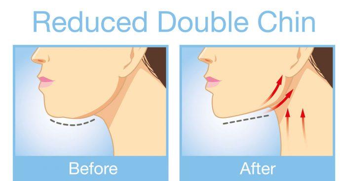 Ako to, že je CFF™ tvárové cvičenie také účinné?