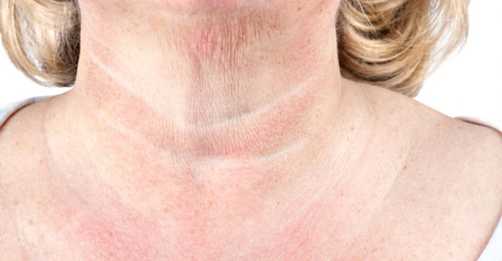 tech neck